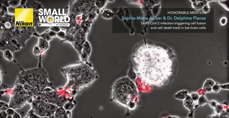 Mikroskopisches Video zeigt, wie das Coronavirus Zellen tötet